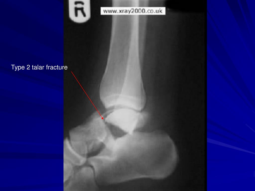 Type 2 talar fracture