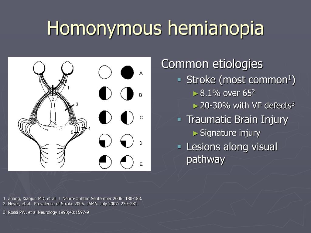 Homonymous Hemianopia Related Keywords & Suggestions ...