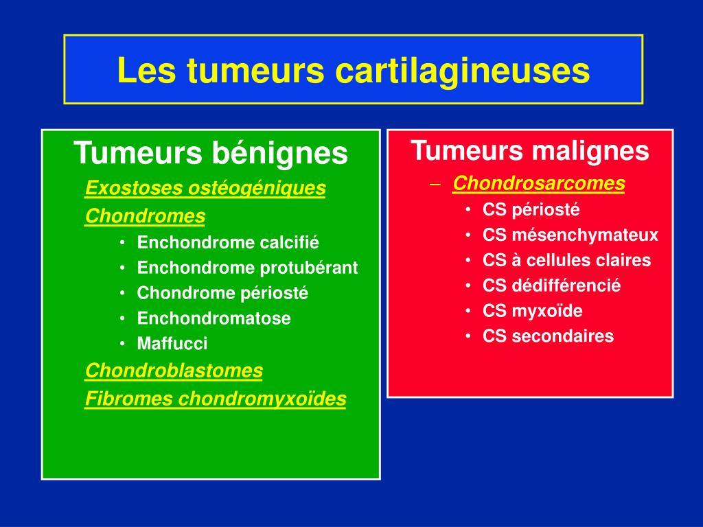 Tumeurs bénignes