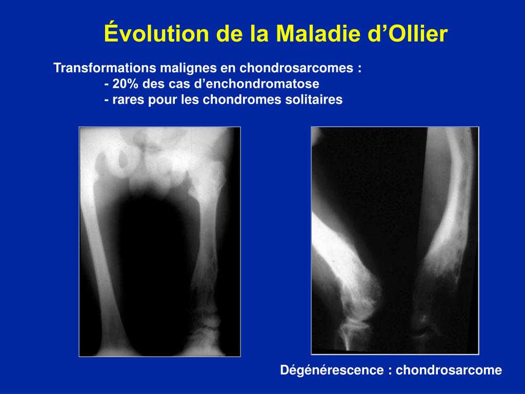 Évolution de la Maladie d'Ollier