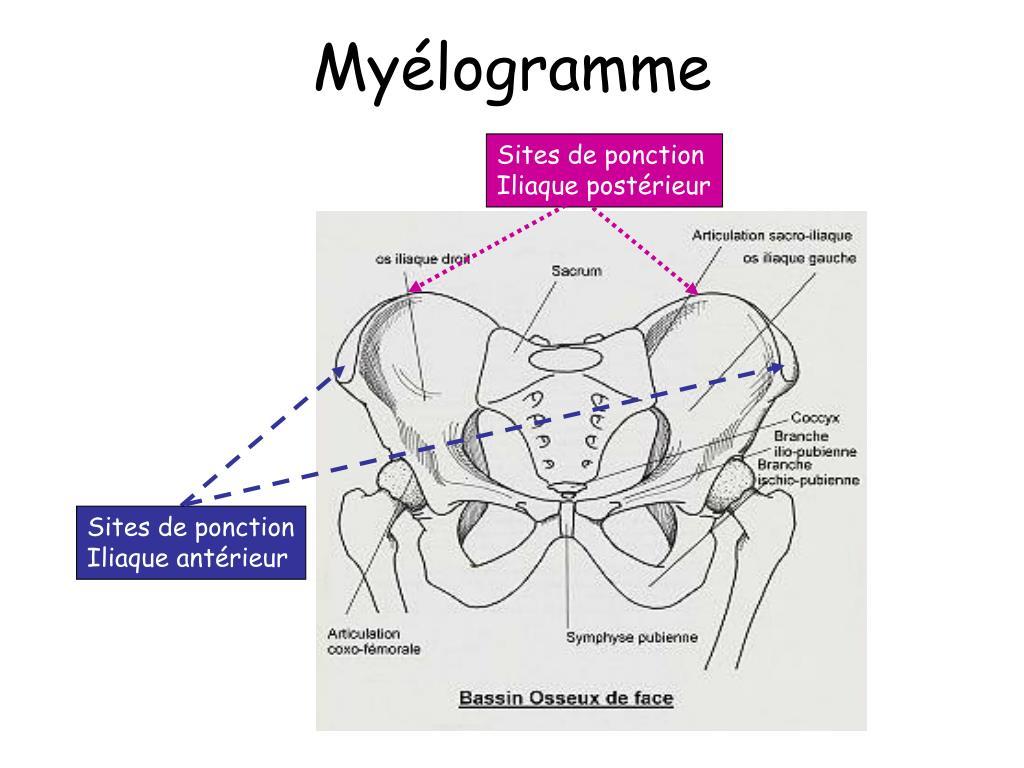 PPT - Myélogramme et Biopsie Ostéo-Médullaire PowerPoint