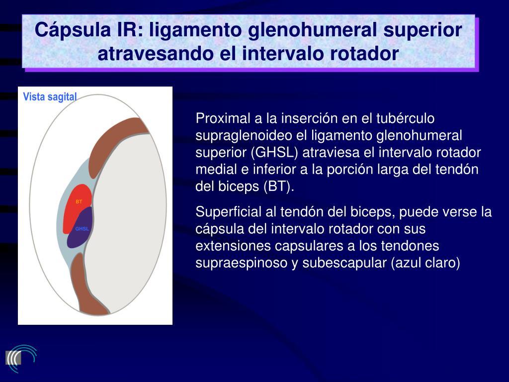 Cápsula IR: ligamento glenohumeral superior atravesando el intervalo rotador