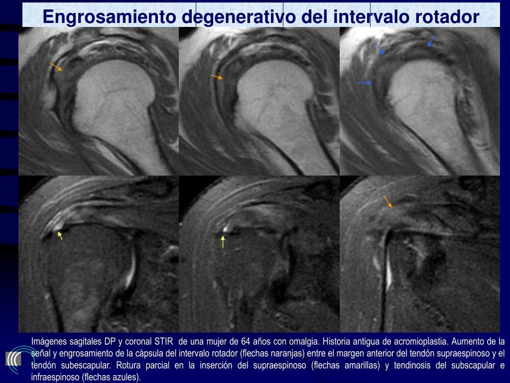 Engrosamiento degenerativo del intervalo rotador