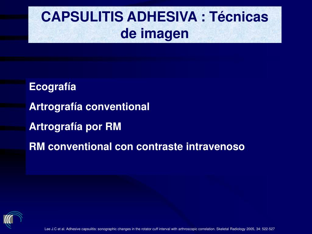 CAPSULITIS ADHESIVA : Técnicas de imagen