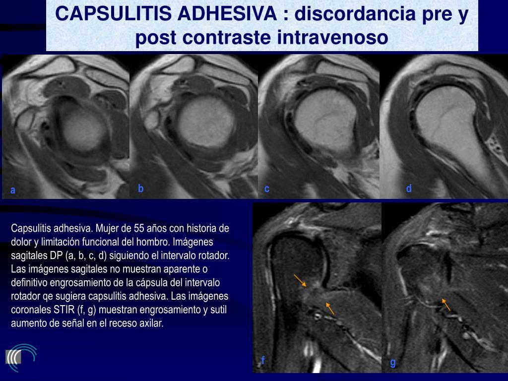 CAPSULITIS ADHESIVA : discordancia pre y post contraste intravenoso