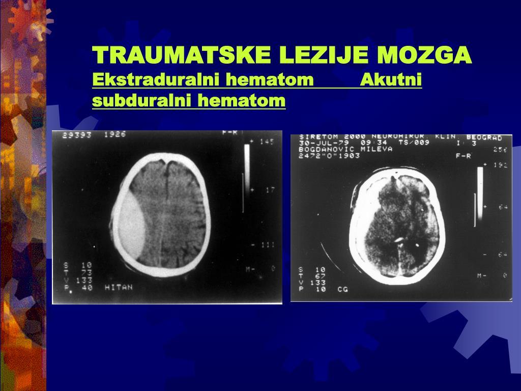 TRAUMATSKE LEZIJE MOZGA