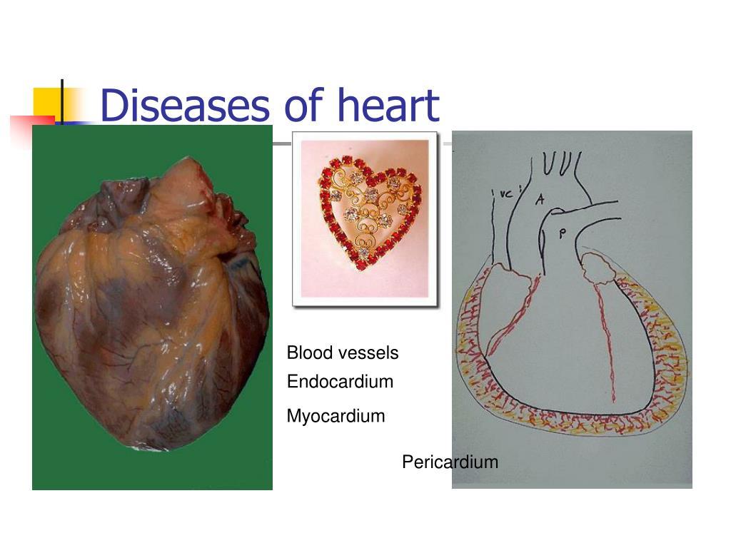 Diseases of heart