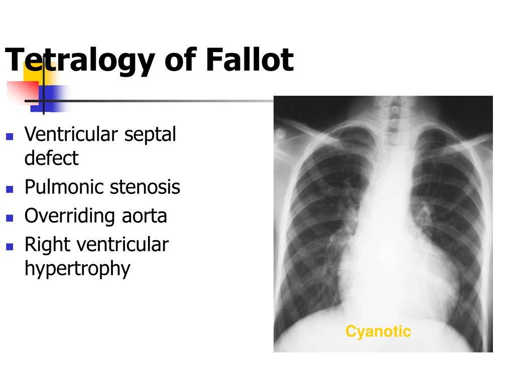 Tetralogy of Fallot