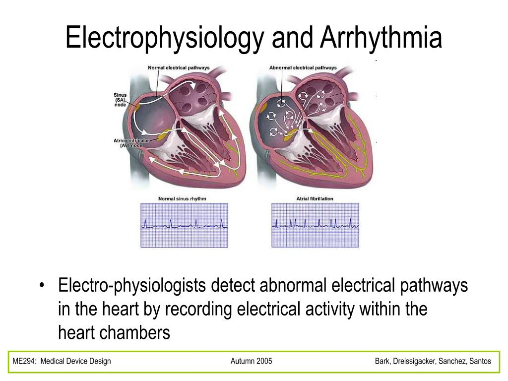 Electrophysiology and Arrhythmia