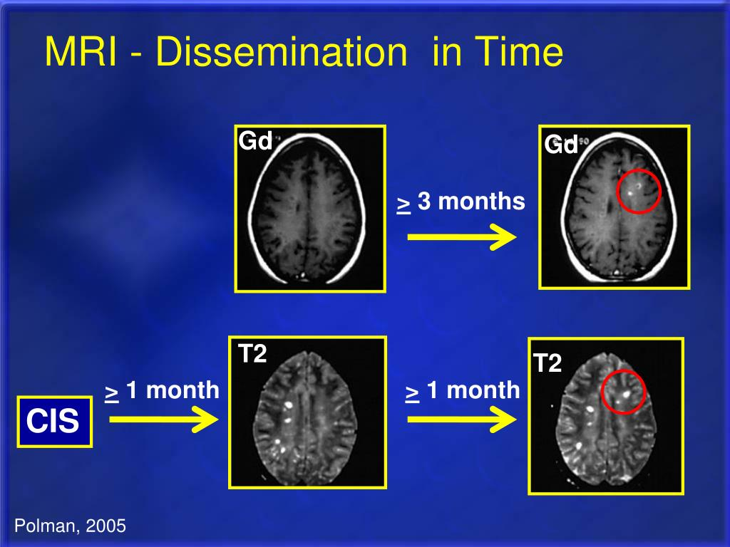 MRI - Dissemination  in Time