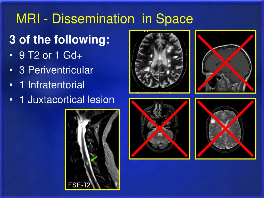 MRI - Dissemination  in Space