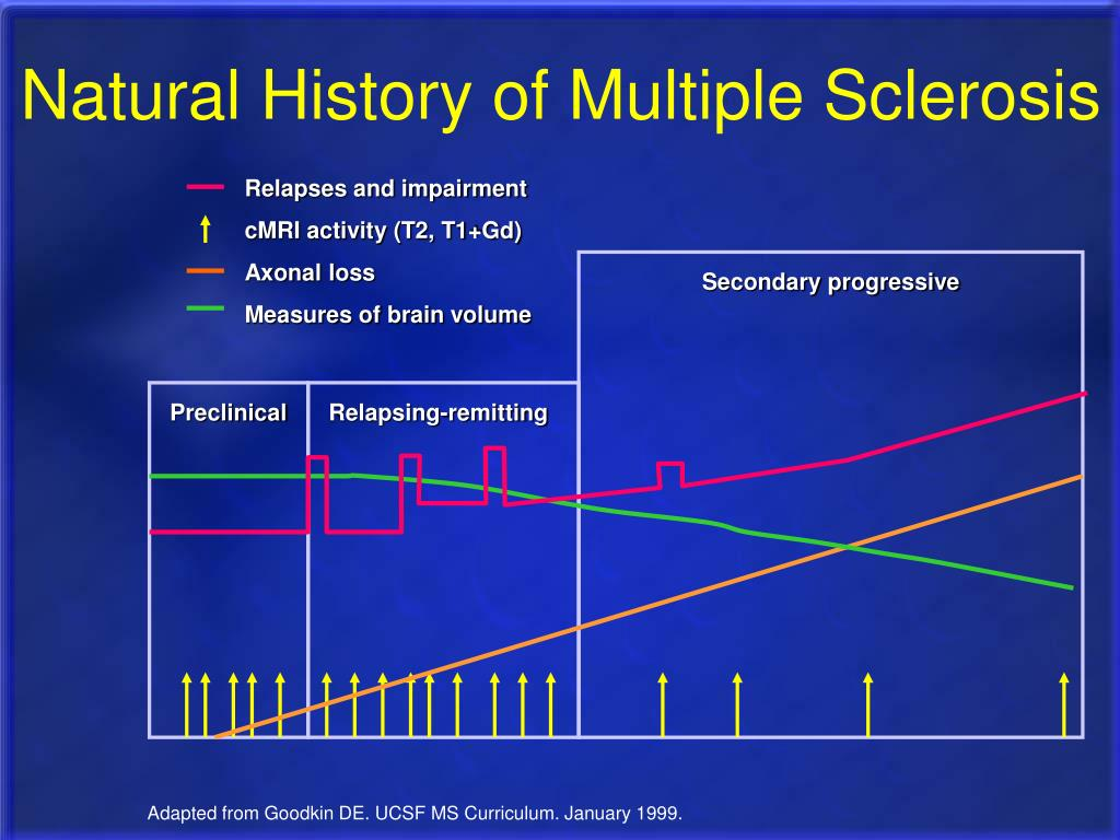 Natural History of Multiple Sclerosis