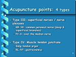 acupuncture points 4 types26