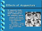 effects of acupuncture18