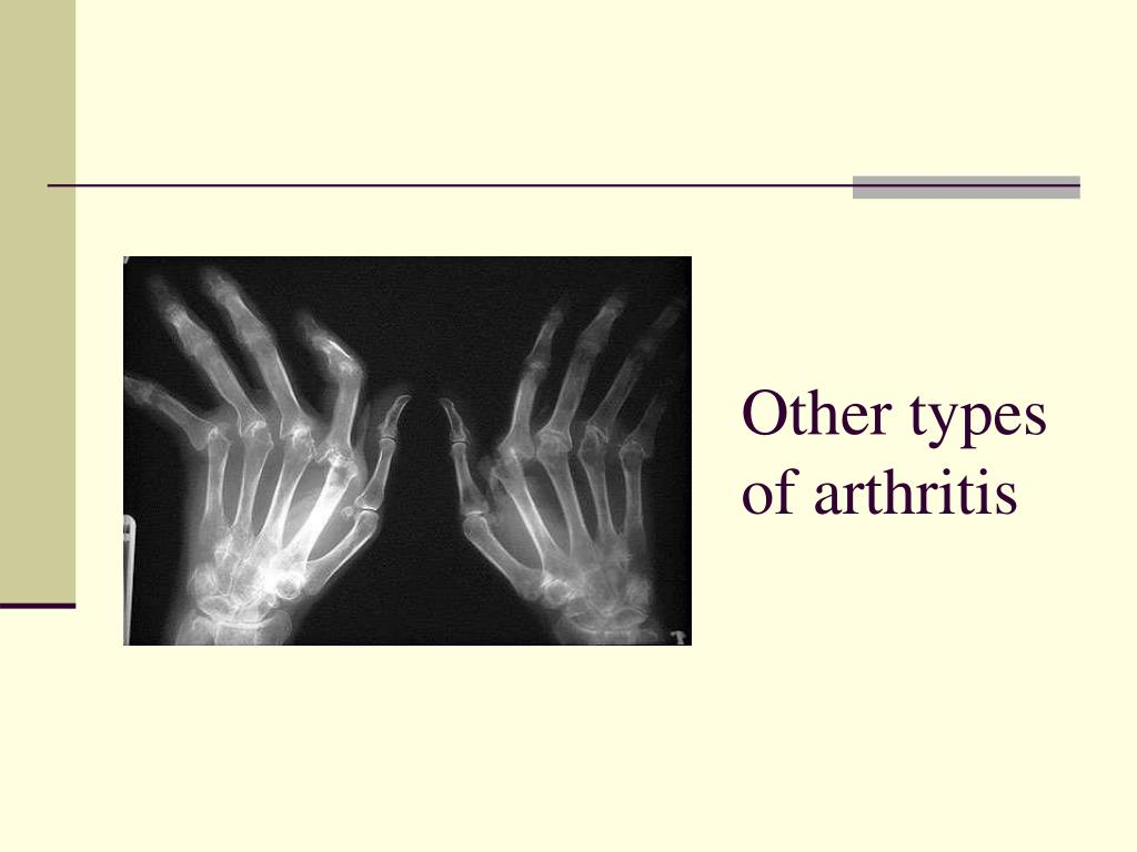 Other types of arthritis