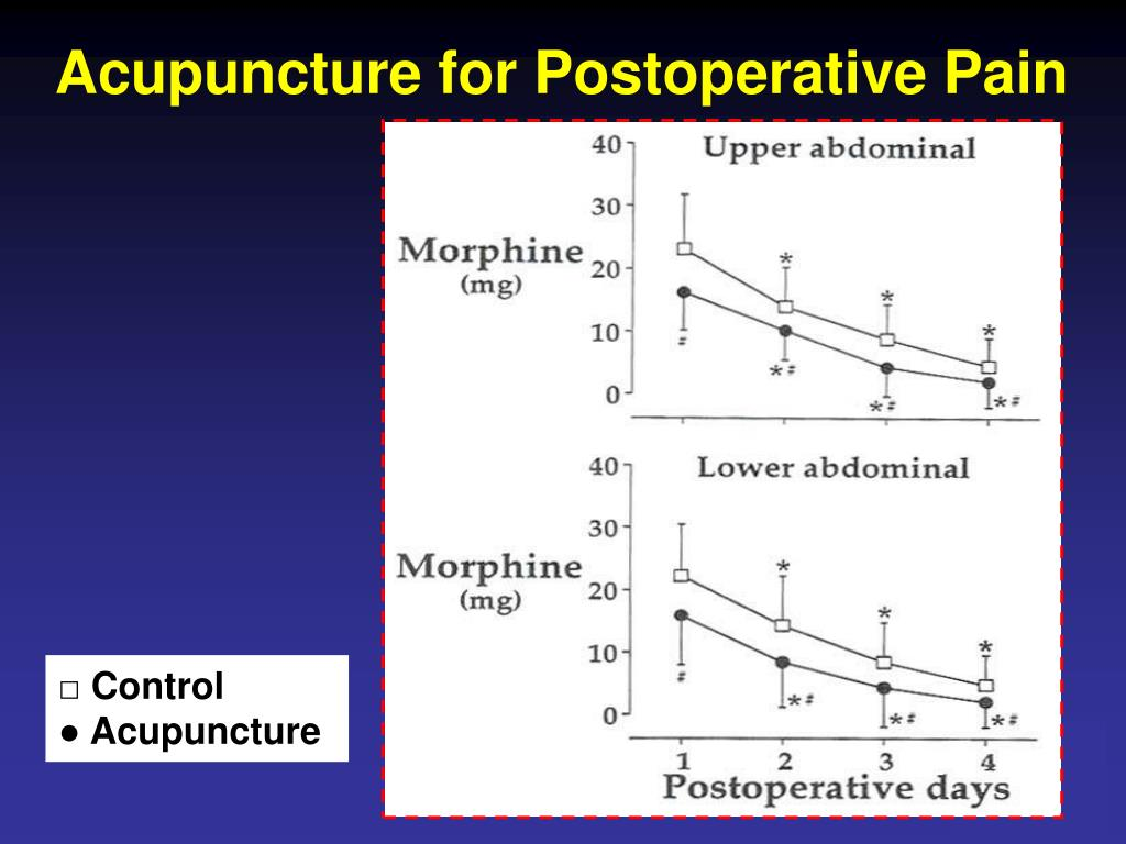 Acupuncture for Postoperative Pain