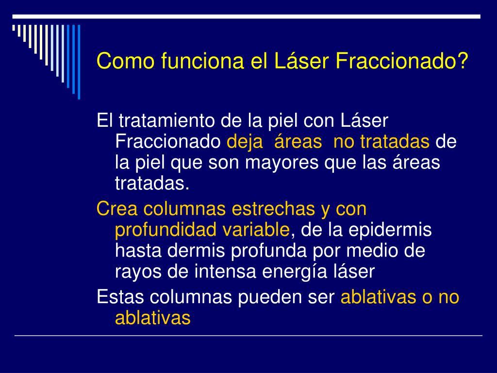 Como funciona el Láser Fraccionado?