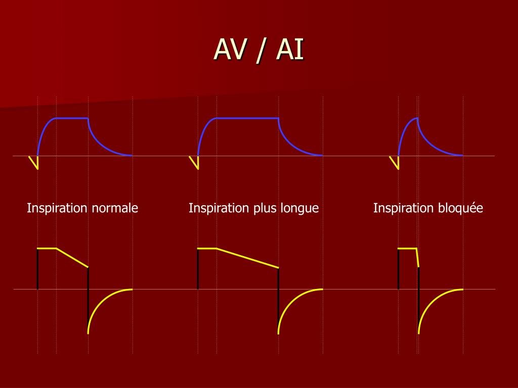 AV / AI
