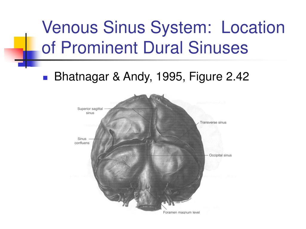 Venous Sinus System:  Location of Prominent Dural Sinuses