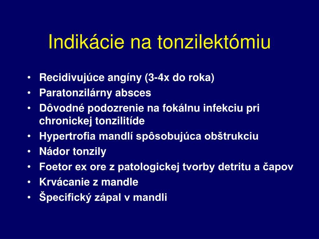 Indikácie na tonzilektómiu