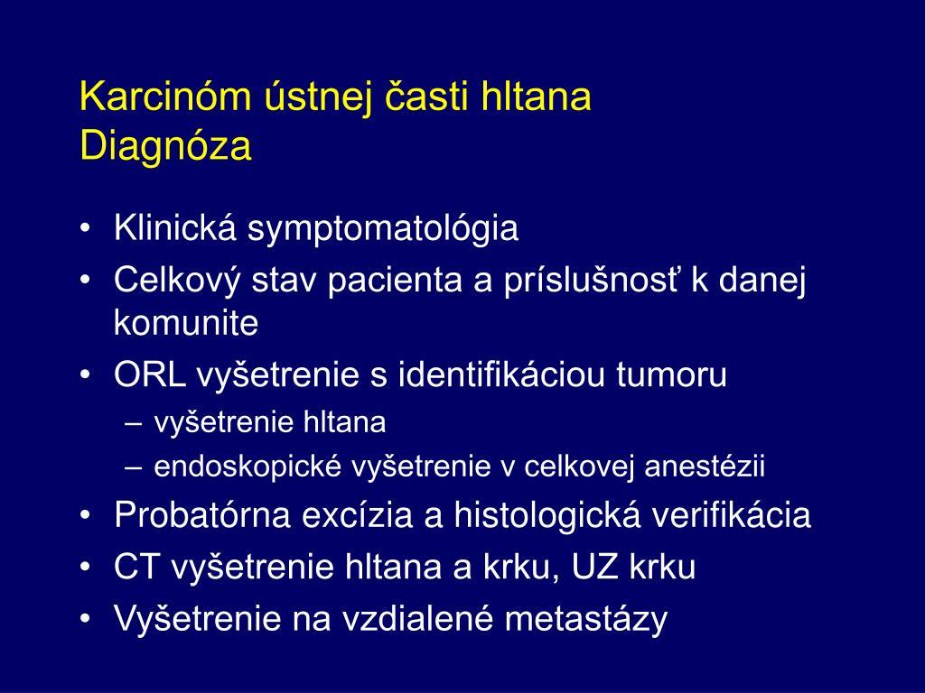 Karcinóm ústnej časti hltana