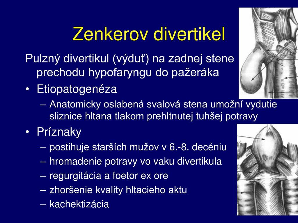 Zenkerov divertikel