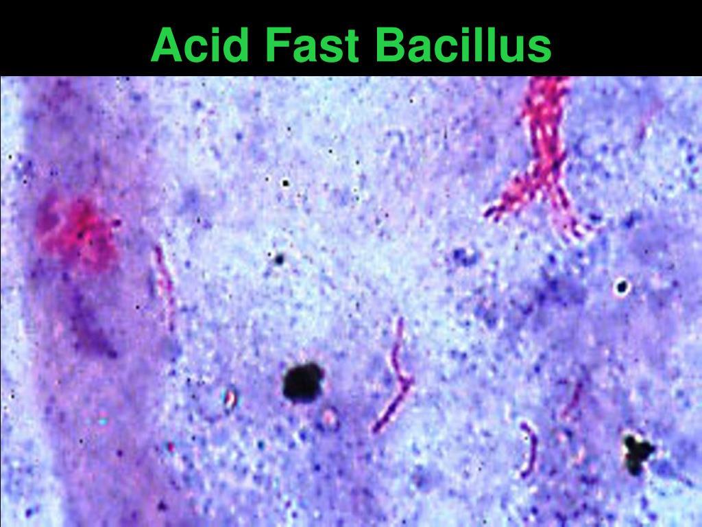 Acid Fast Bacillus