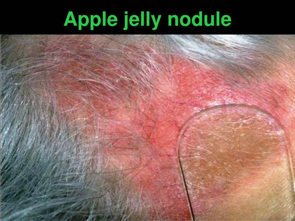 Apple jelly nodule