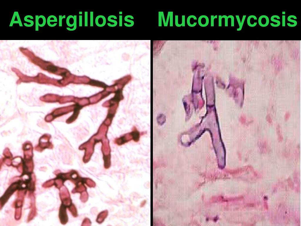 Aspergillosis    Mucormycosis
