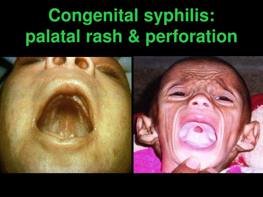 Congenital syphilis:             palatal rash & perforation