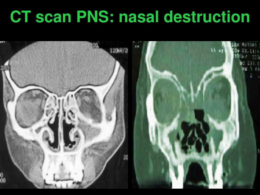 CT scan PNS: nasal destruction