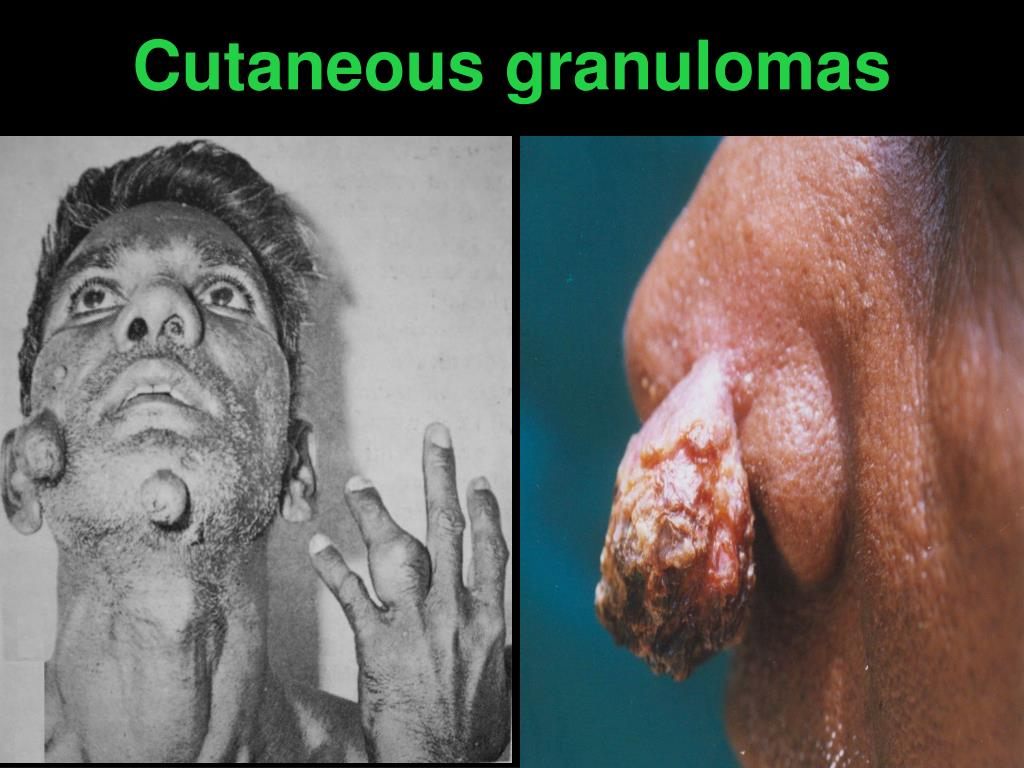 Cutaneous granulomas