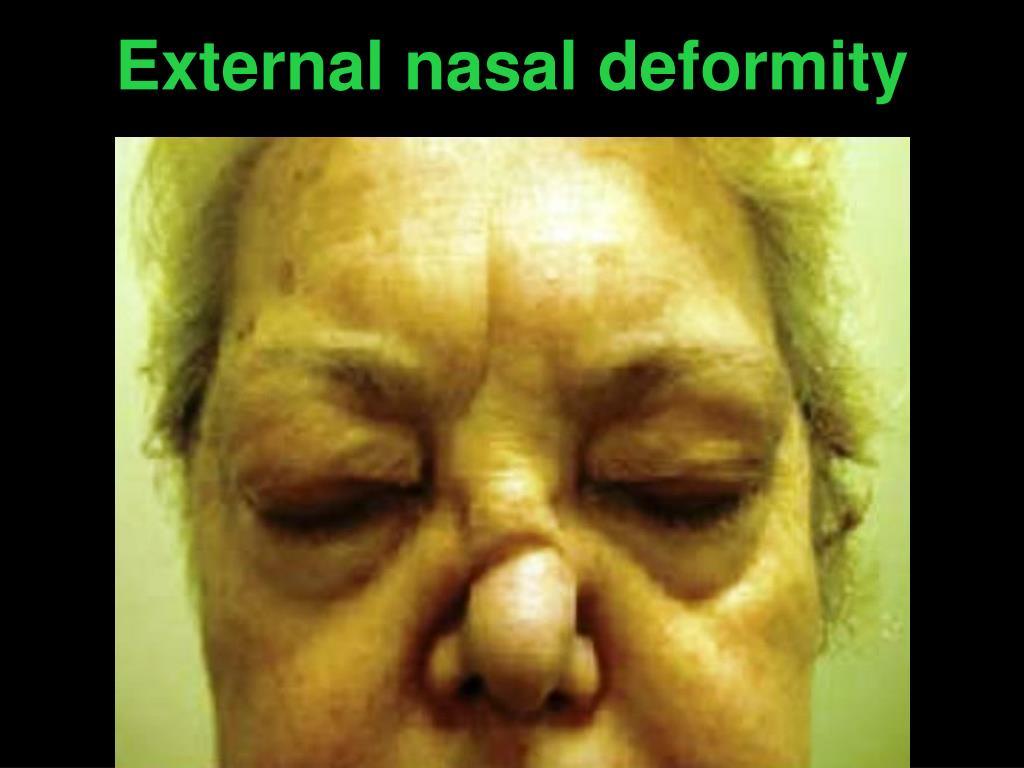 External nasal deformity