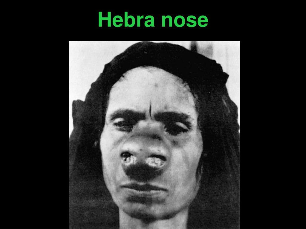 Hebra nose