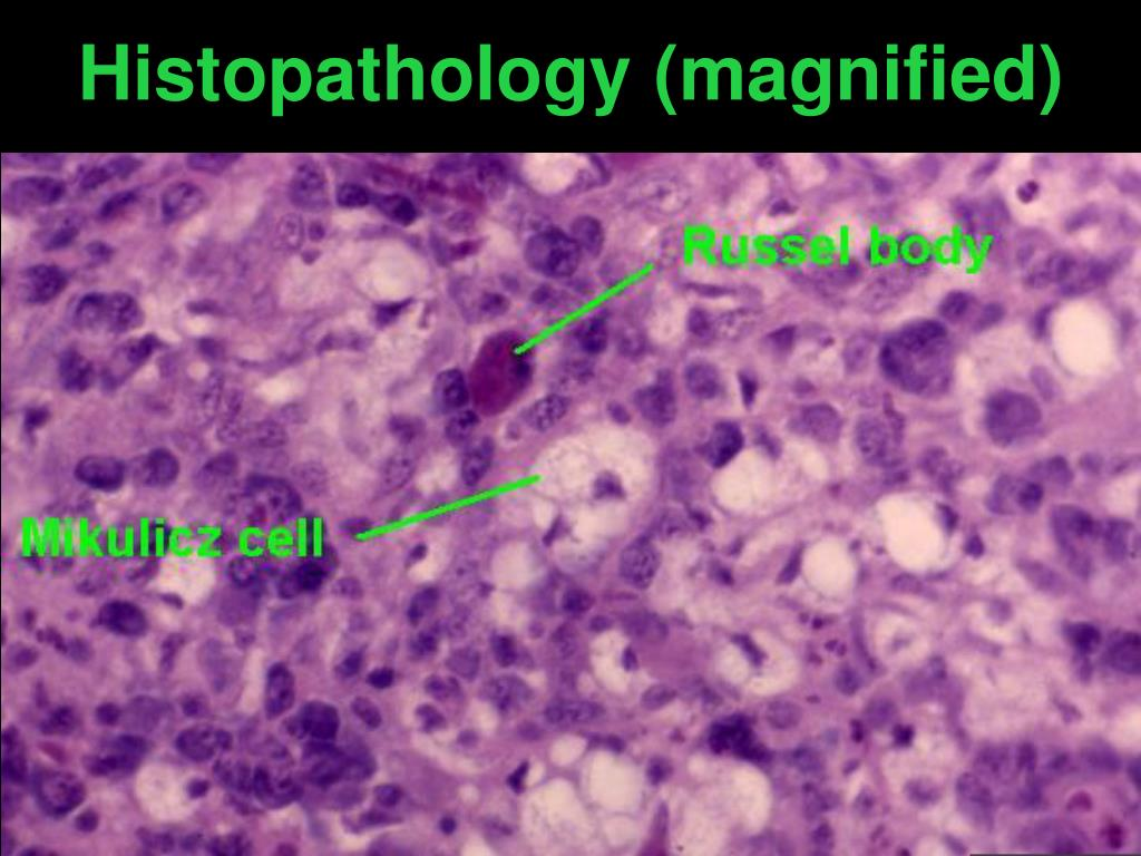 Histopathology (magnified)