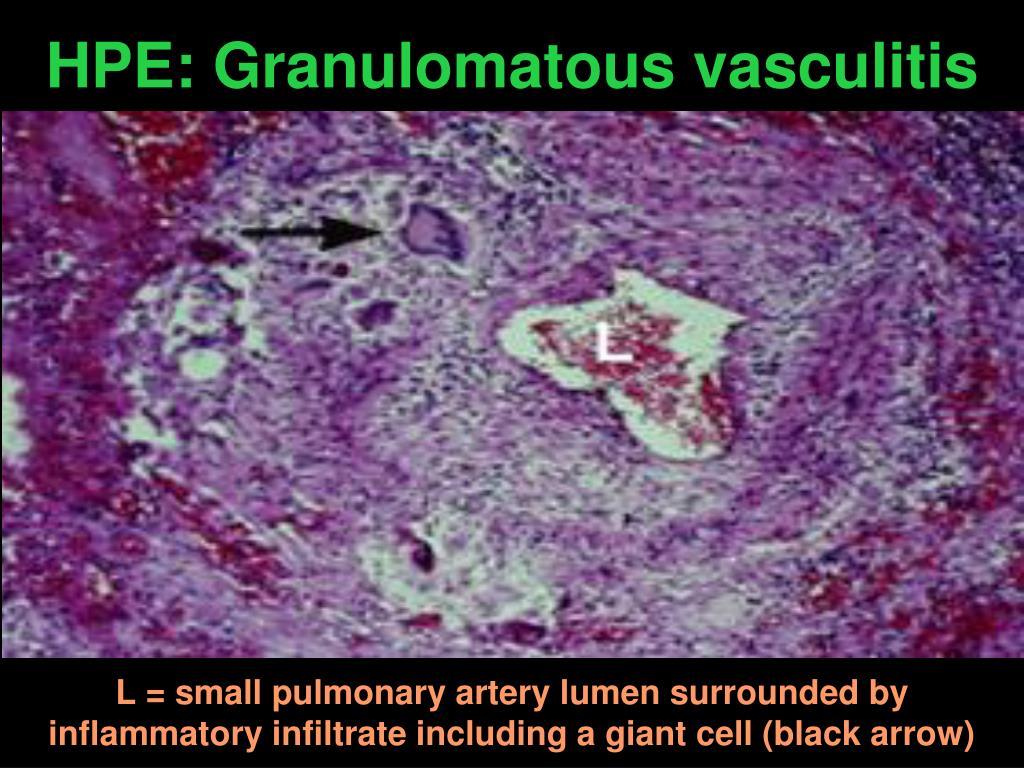 HPE: Granulomatous vasculitis