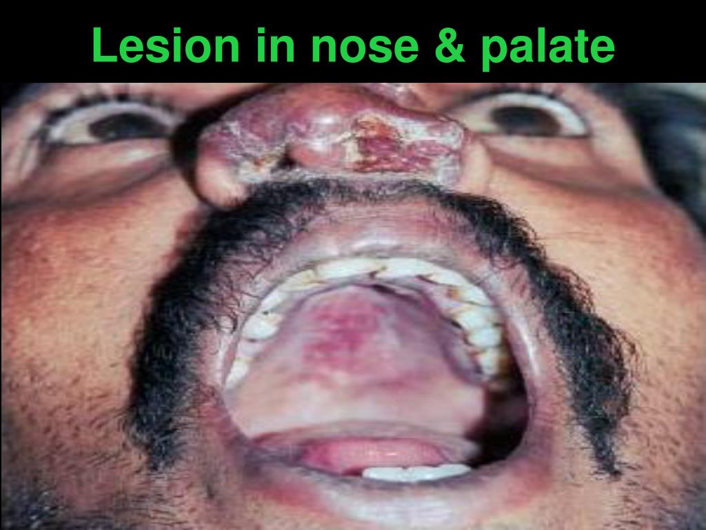 Lesion in nose & palate