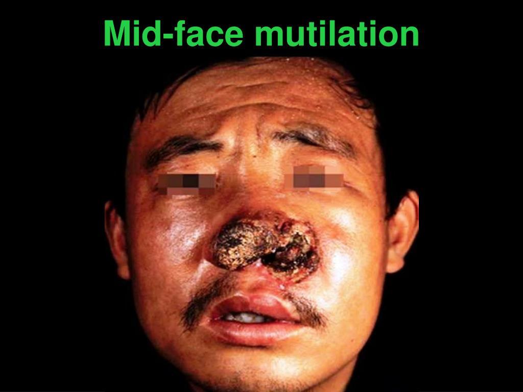Mid-face mutilation