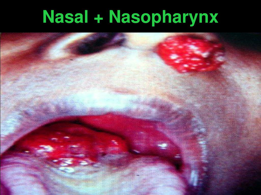 Nasal + Nasopharynx