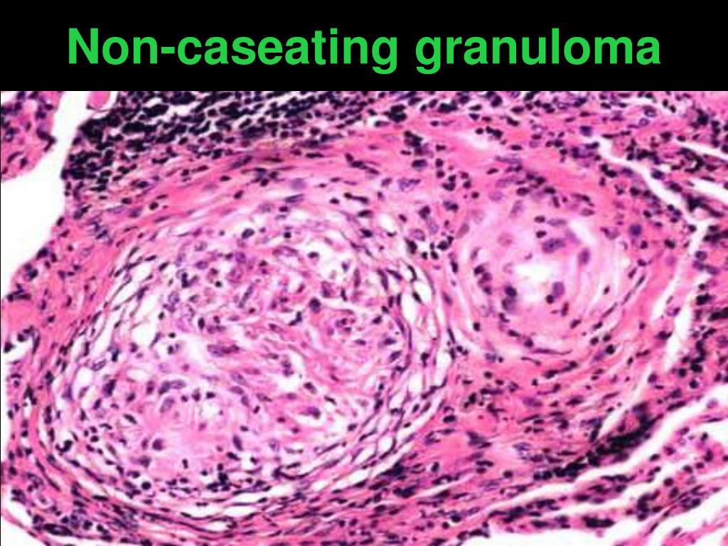 Non-caseating granuloma