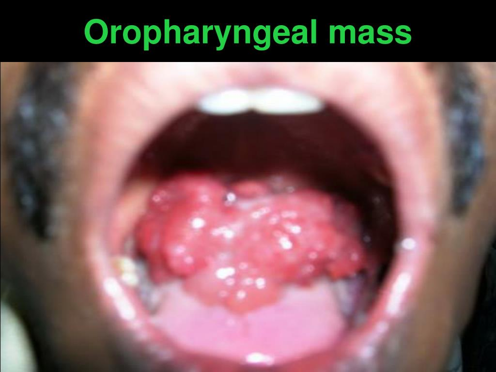 Oropharyngeal mass