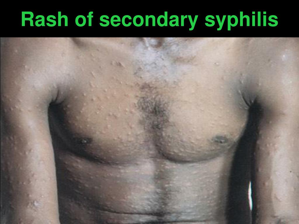Rash of secondary syphilis
