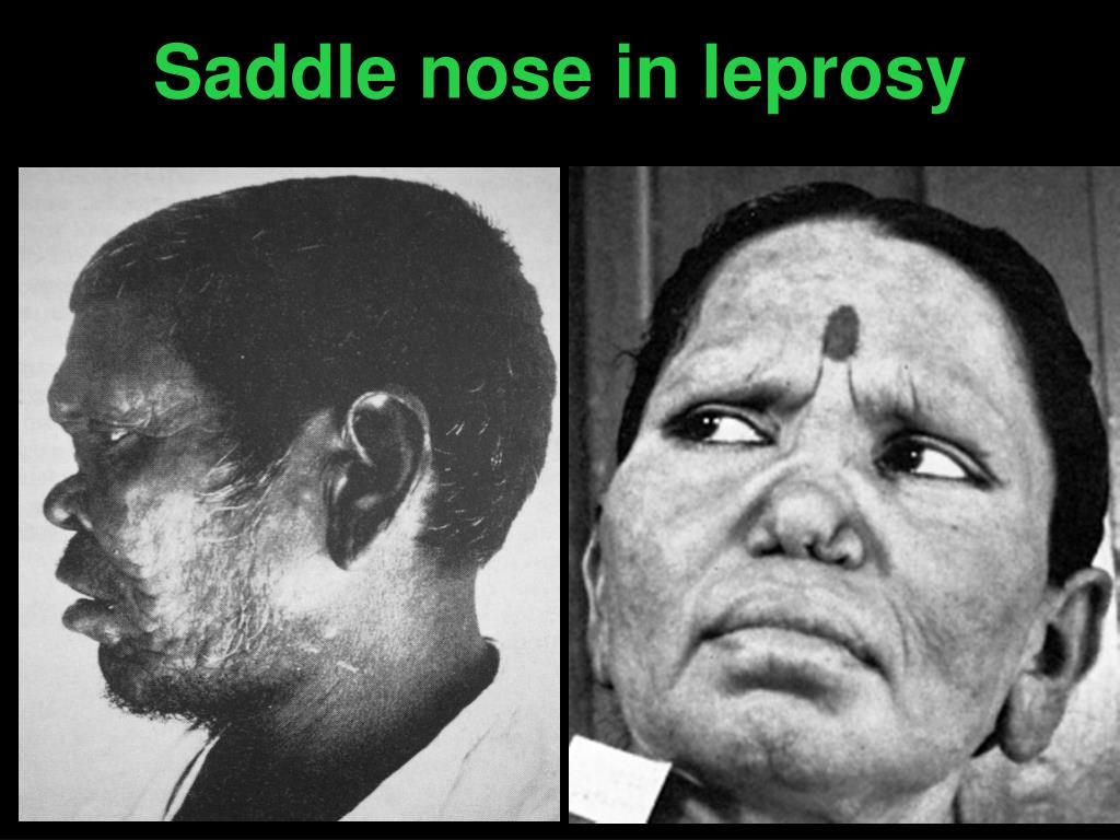 Saddle nose in leprosy