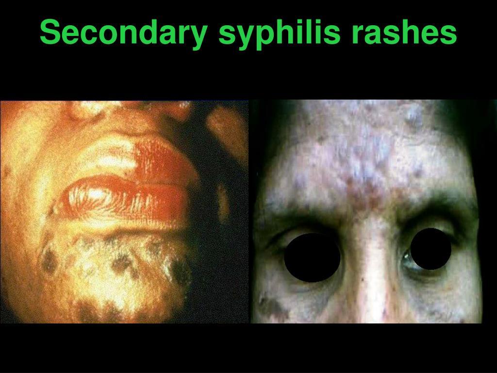 Secondary syphilis rashes