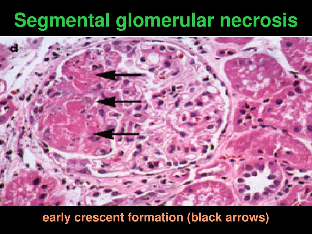 Segmental glomerular necrosis