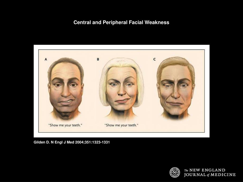 Central and Peripheral Facial Weakness