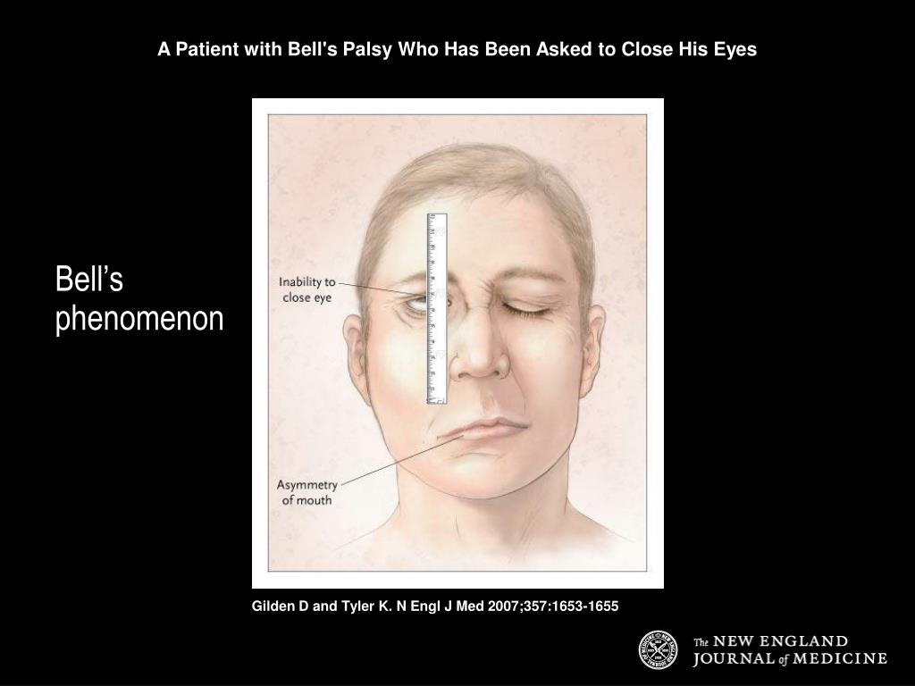 A Patient with Bell's Palsy Who Has Been Asked to Close His Eyes