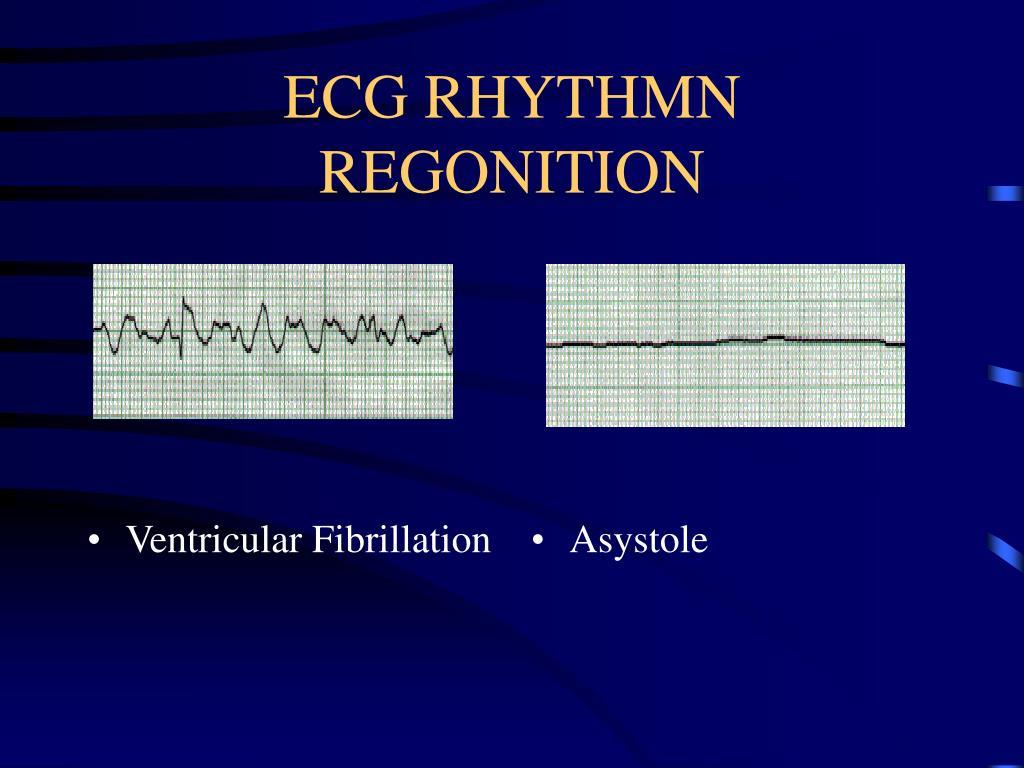 ECG RHYTHMN REGONITION