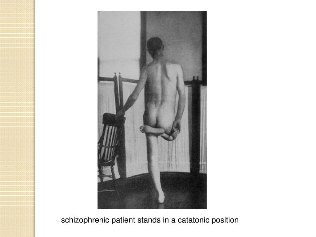 schizophrenic patient stands in a catatonic position