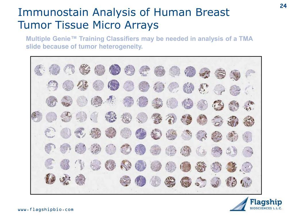 Immunostain Analysis of Human Breast Tumor Tissue Micro Arrays